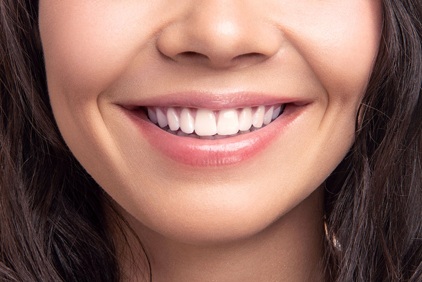5 Tips for Keeping Your Teeth White after a Whitening Treatment-3669364a