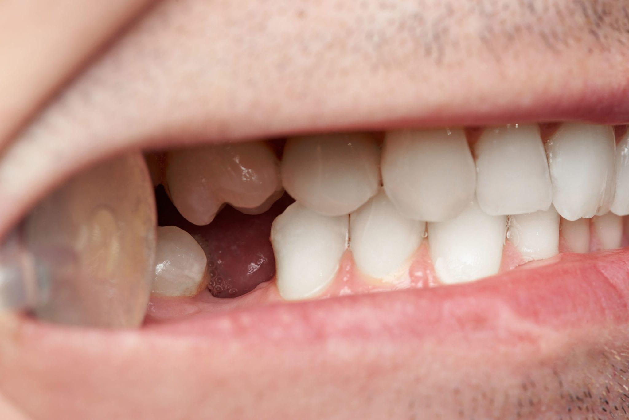 5 Ways Missing Teeth Can Harm Your Dental Health-b8748478