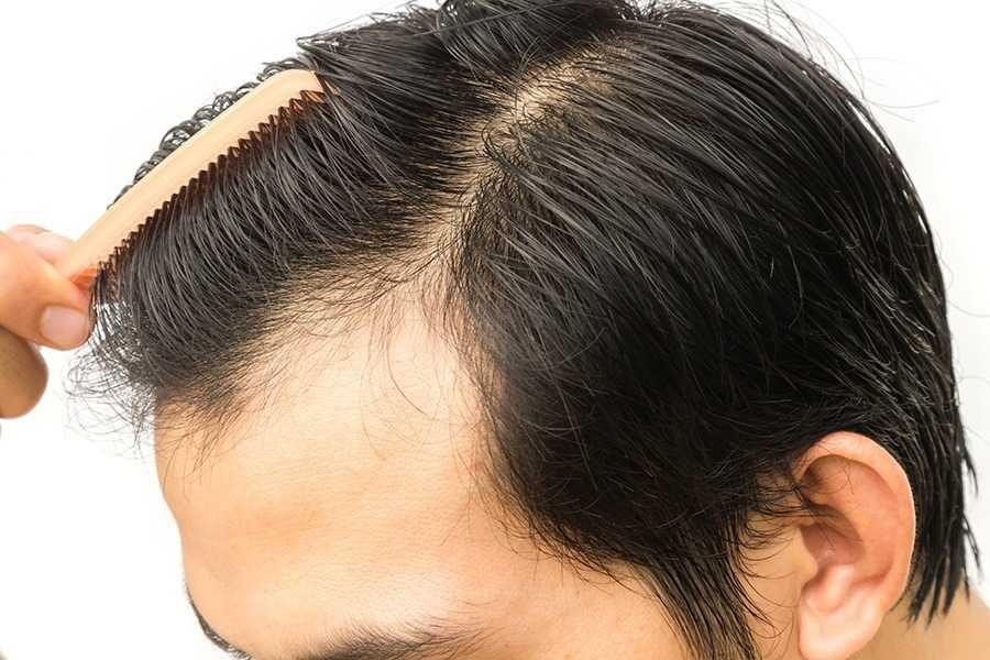 is-hair-transplant-permanent-495b84a2